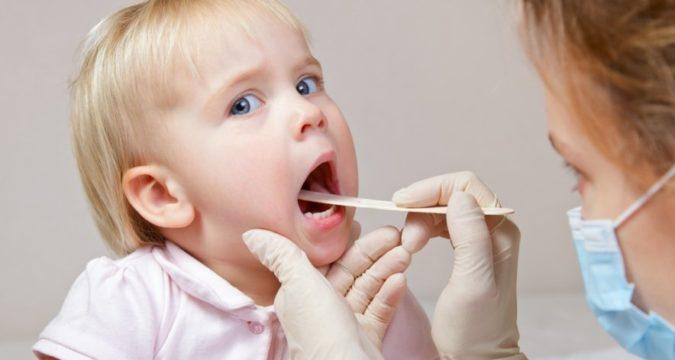 Как лечить ангину ребенку 1 год
