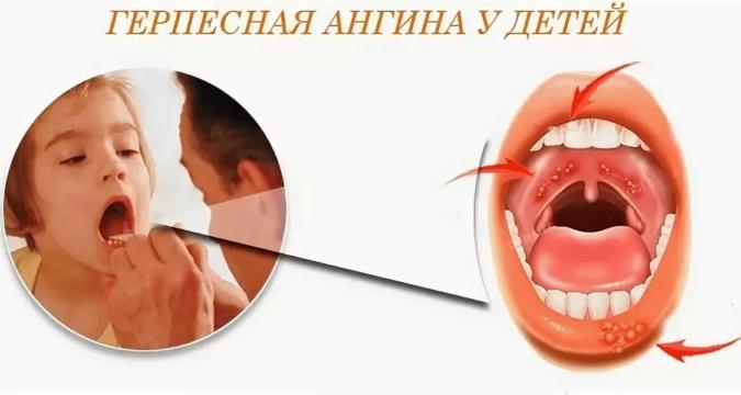 Как лечить герпесную ангину у ребенка