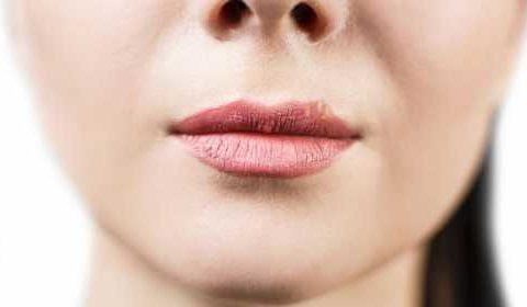 Что делать если выскочила простуда на губе