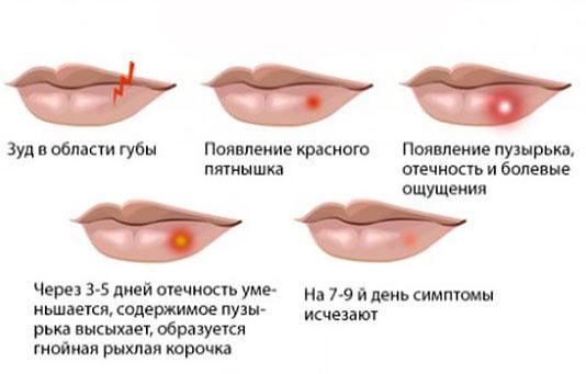 Как быстро избавиться от простуды на губе
