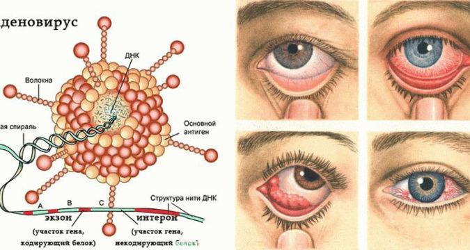 Аденовирусная инфекция