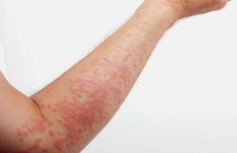 Аллергические реакции на введение инсулина