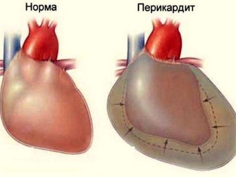 Водянка сердца