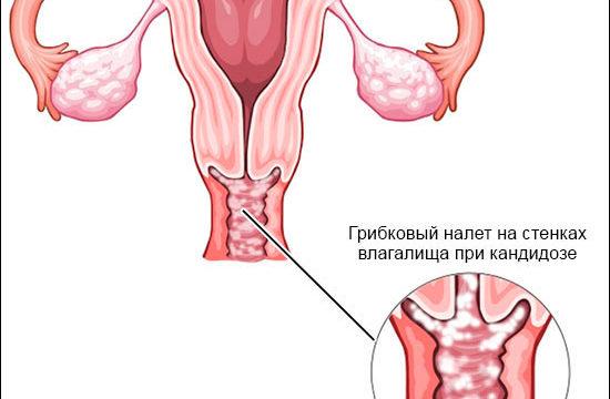Как эффективно лечить молочницу у женщин