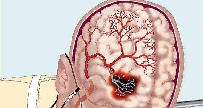 Гипертензивный церебральный криз