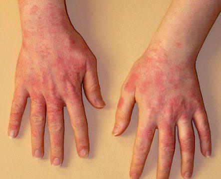 Аллергия на руках чем лечить