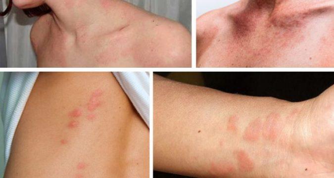 Что делать при аллергии кожи