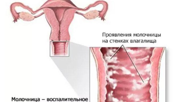 Как вылечить молочницу у женщин