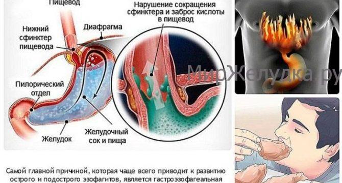 Изжога в желудке причины