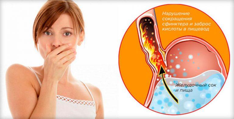 Изжога при беременности второй триместр