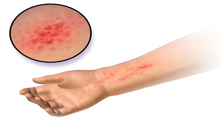 Симптоматика заболевания пищевой аллергии