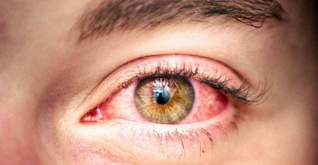 Аллергия на глазах чем лечить