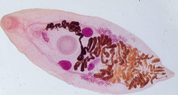 Дикроцелиоз