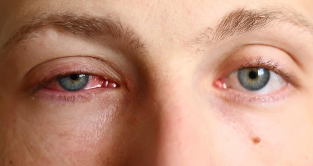 глаза начинают краснеть